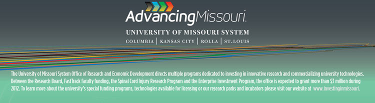 Spinal Cord Injury Research Programs: Grants of up to $250,000